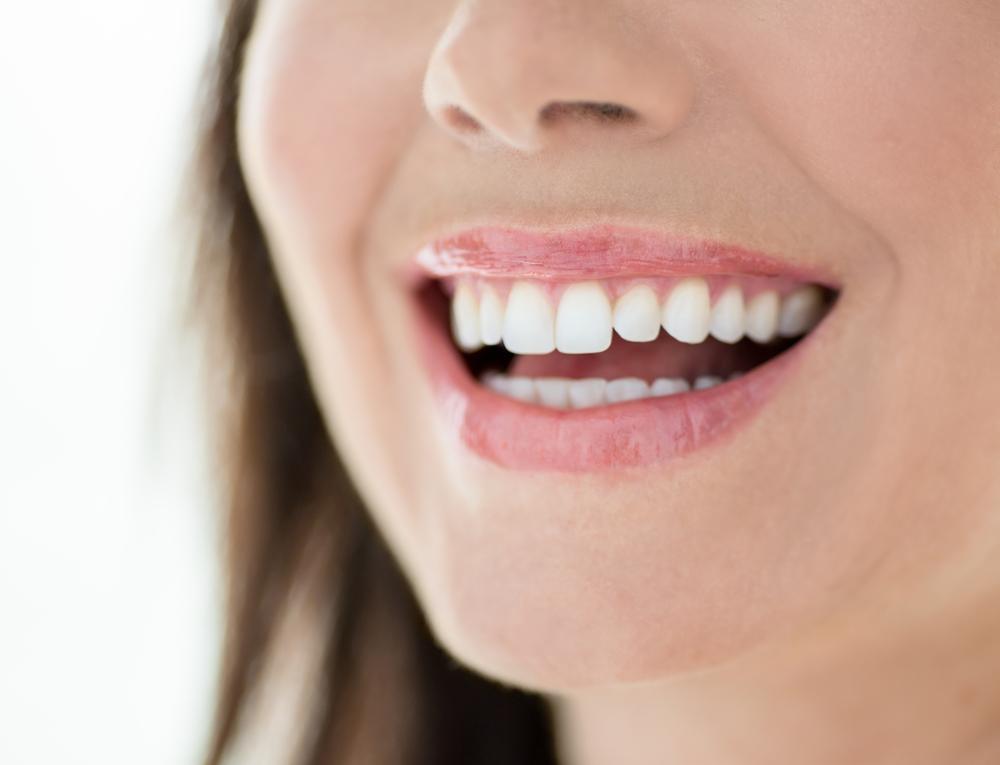 Precio de Carillas dentales en España